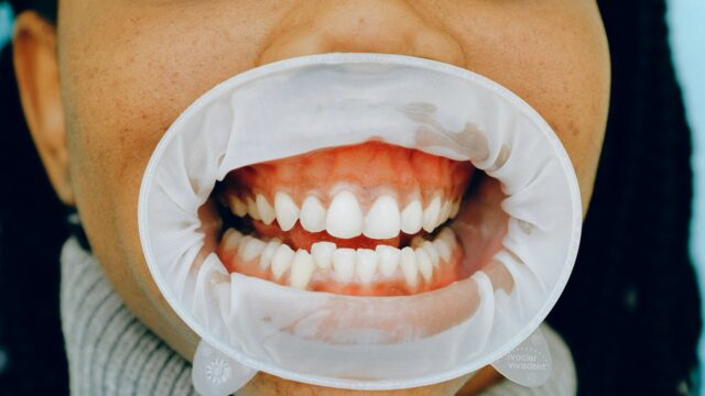 how to take care of your gums